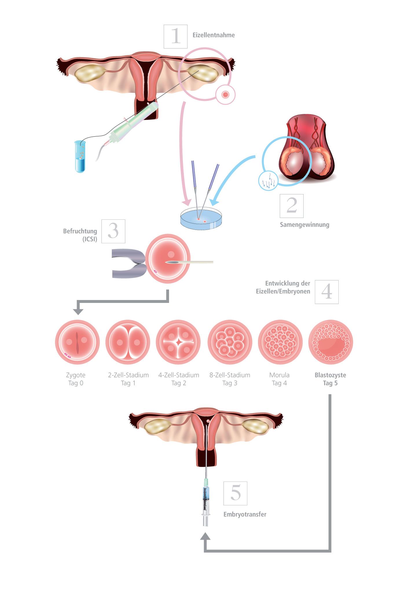 Schematische Darstellung einer Kinderwunschbehandlung mit ICSI und Blastozystenkultur │ © 2019 Shutterstock/IVF Zentren Prof. Zech • Member of NEXTCLINICS