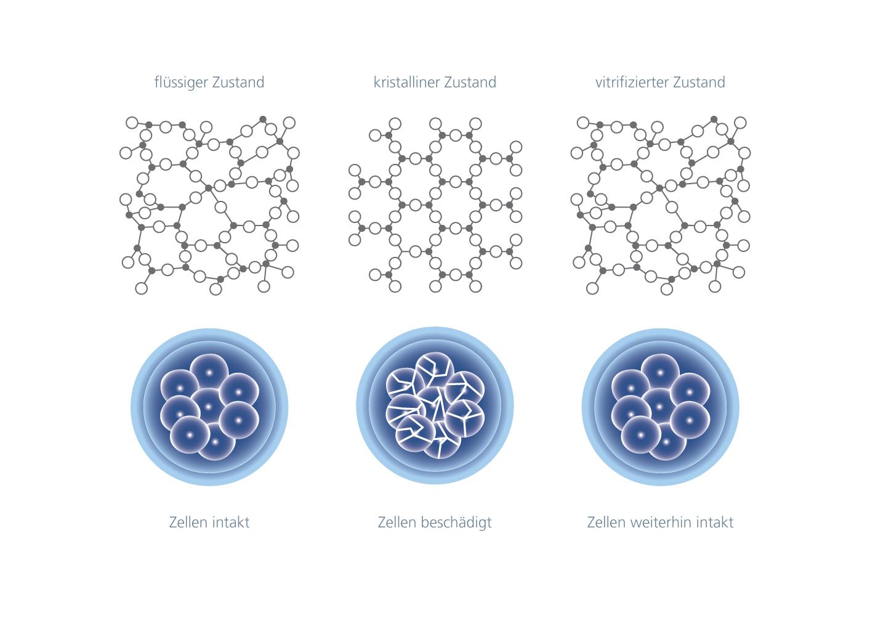 Schematische Darstellung der Zellen im flüssigen, kristallinen und vitrifizierten Zustand │ © 2019 IVF Zentren Prof. Zech • Member of NEXTCLINICS