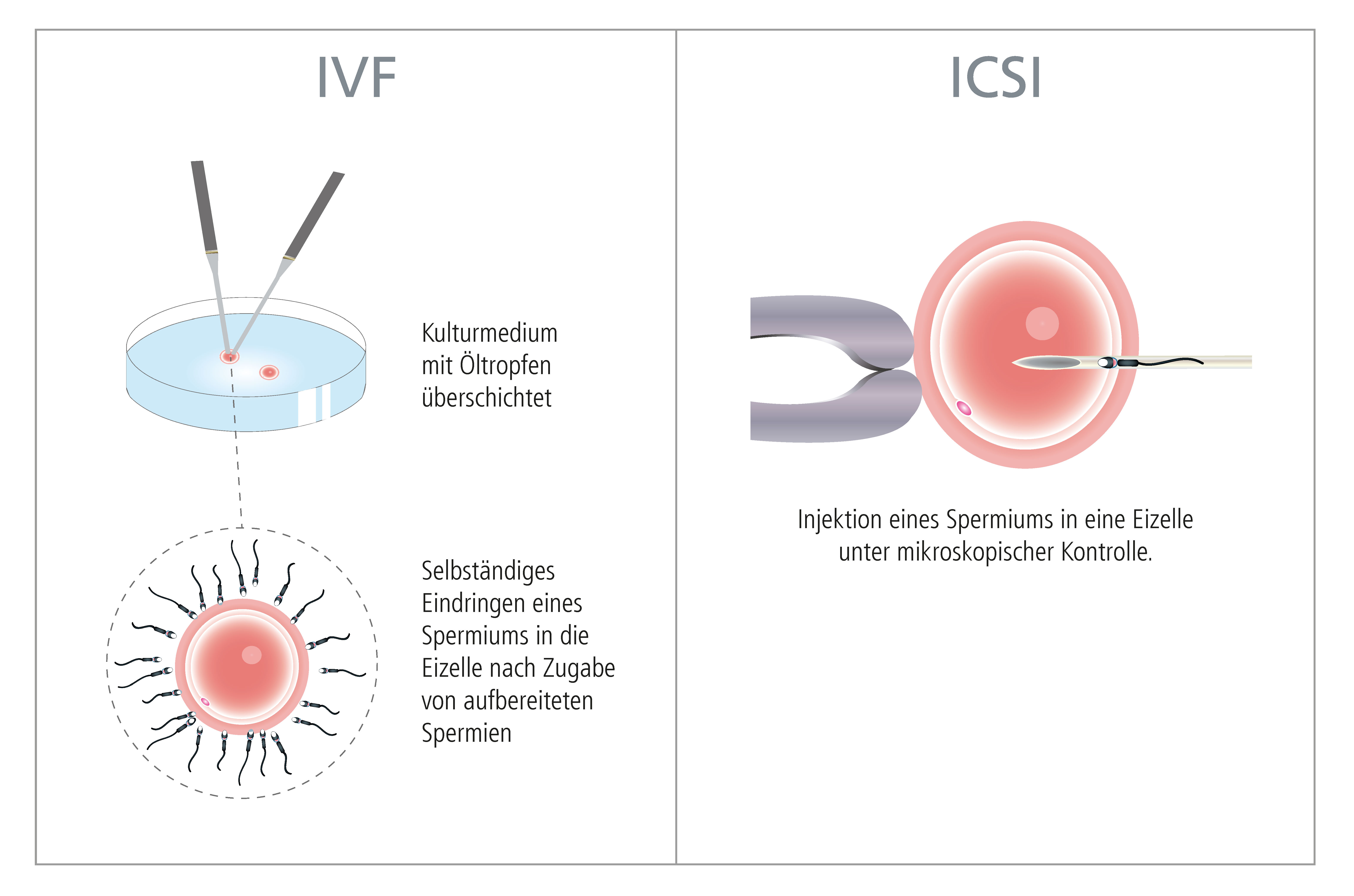 Schematic representation of the fertilization of an egg during IVF treatment: comparison between IVF and ICSI │ © 2019 IVF Zentren Prof. Zech • Member of NEXTCLINICS